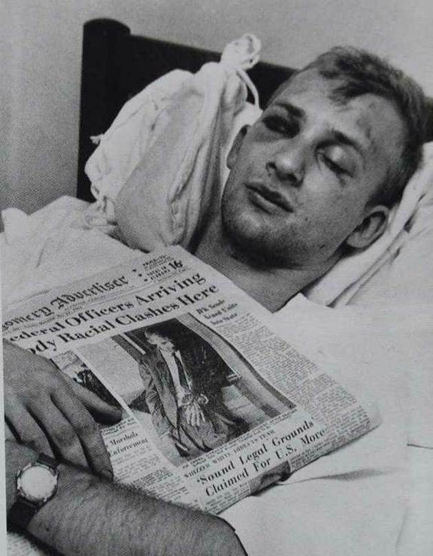 Civil rights activist James Zwerg after being beaten by a white mob in Alabama, 1961. (After the beating he had to wait two hours for treatment as no white crew would pick him up.)