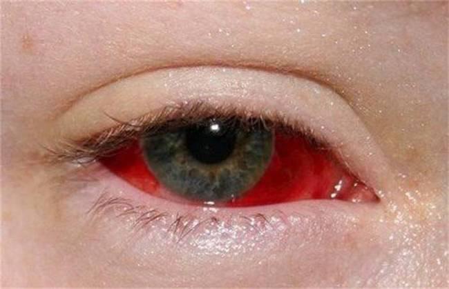 eyeball-tattoos-10