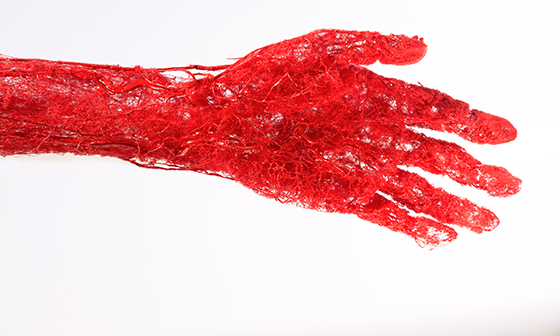 Plastinate arm on display in Expedition Health ant DMNS.